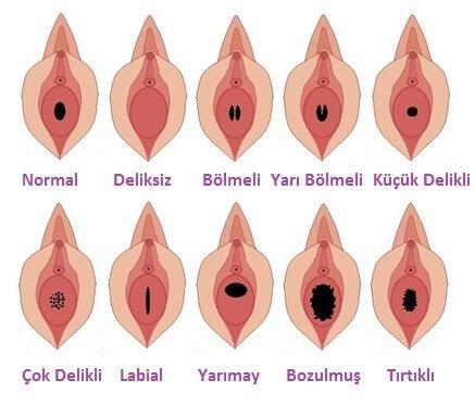 vajina daraltici bitkiler